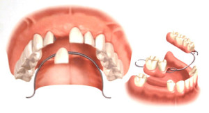 partial_denture